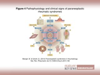 Figure 4  Pathophysiology and clinical signs of paraneoplastic rheumatic syndromes