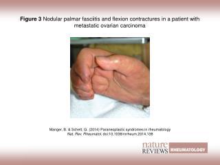 Manger, B. & Schett, G.  (2014)  Paraneoplastic syndromes in rheumatology