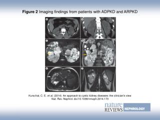 Figure 2  Imaging findings from patients with ADPKD and ARPKD