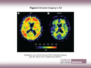 Figure 3  Amyloid imaging in AD