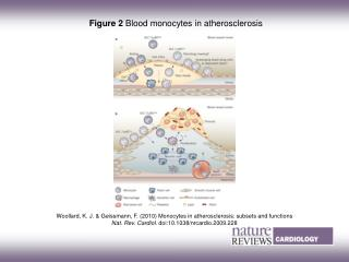 Figure 2  Blood monocytes in atherosclerosis