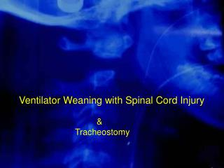 Ventilator Weaning with Spinal Cord Injury