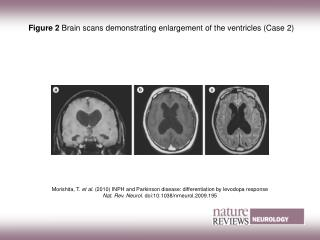 Figure 2  Brain scans demonstrating enlargement of the ventricles (Case 2)