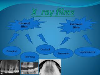 X _ray films