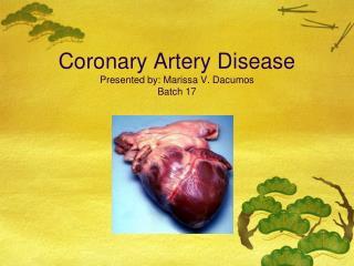 Coronary Artery Disease Presented by: Marissa V. Dacumos Batch 17