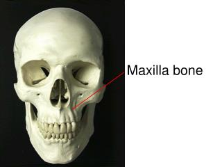 Maxilla bone