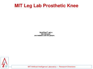MIT Leg Lab Prosthetic Knee