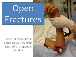 Adeel Husain PGY 3 Loma Linda University Dept of Orthopaedic Surgery