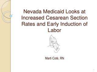 Nevada Medicaid Looks at Increased Cesarean Section Rates and Early Induction of Labor