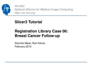 Slicer3 Tutorial Registration Library Case 06:   Breast Cancer Follow-up
