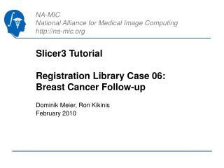 Slicer3 Tutorial Registration Library Case 06:   Breast Cancer Follow-up