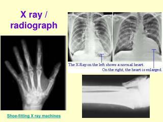 X ray / radiograph