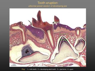 Tooth eruption ultra-low power section of developing jaw