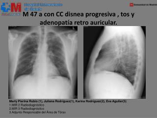 M 47 a con CC disnea progresiva , tos y adenopatía retro auricular.