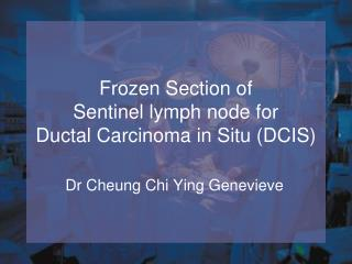 Frozen Section of Sentinel lymph node for Ductal Carcinoma in Situ (DCIS)