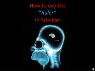 "How to use the  "" Ruler"" in Synapse"