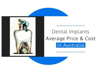 Average Dental Implant Cost in Sydney and Melbourne