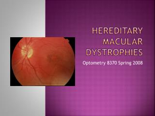 Hereditary Macular dystrophies