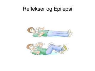 Reflekser og Epilepsi
