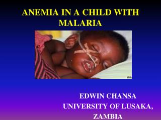 ANEMIA  IN A CHILD WITH MALARIA