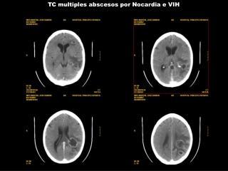 TC multiples abscesos por Nocardia e VIH