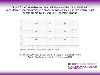 To ACY  et al. (2008)  A case of cardiogenic shock caused by capecitabine treatment