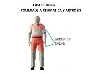 POLIMIALGIA REUMATICA Y ARTROSIS