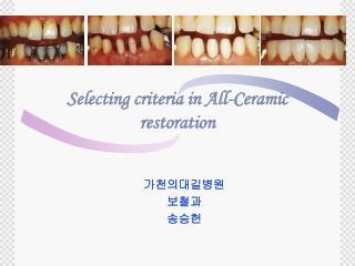 Selecting criteria in All-Ceramic restoration