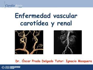 Enfermedad vascular carotídea y renal
