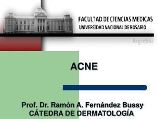 ACNE  Prof. Dr. Ramón A. Fernández Bussy CÁTEDRA DE DERMATOLOGÍA