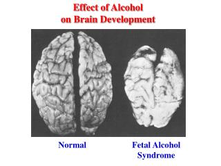 Effect of Alcohol on Brain Development