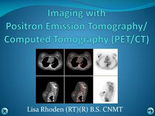Imaging with  Positron  Emission  Tomography/ Computed Tomography  ( PET/CT)