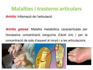 Artritis : Inflamació de l'articulació