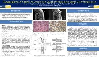 Paraganglioma of T-spine: An Uncommon Cause of Progressive Spinal Cord Compression