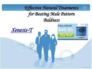 Effective Natural Treatments for Beating Male Pattern Baldne