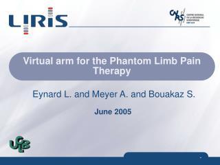 Virtual arm for the Phantom Limb Pain Therapy