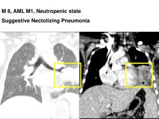 M 8, AML M1, Neutropenic state Suggestive Nectotizing Pneumonia