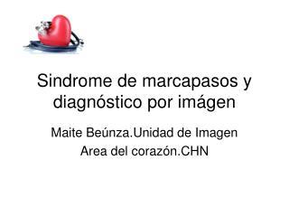 Sindrome de marcapasos y diagnóstico por imágen
