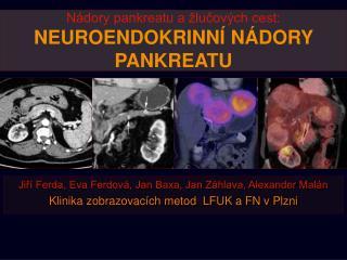 Nádory pankreatu a žlučových cest: NEUROENDOKRINNÍ NÁDORY PANKREATU