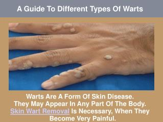 A Guide To Different Types Of Warts