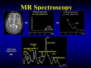 MR Spectroscopy