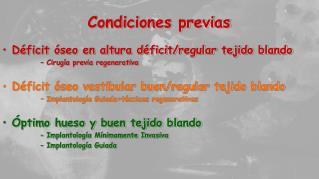 Condiciones previas