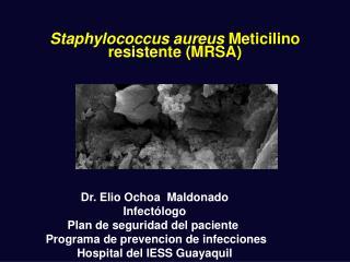 Staphylococcus aureus  Meticilino resistente (MRSA)