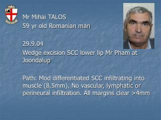 Mr Mihai TALOS 59 yr old Romanian man 29.9.04 Wedge excision SCC lower lip Mr Pham at Joondalup
