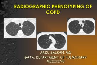 RADIOGRAPHIC PHENOTYPING OF COPD