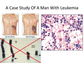 A Case Study Of A Man With Leukemia