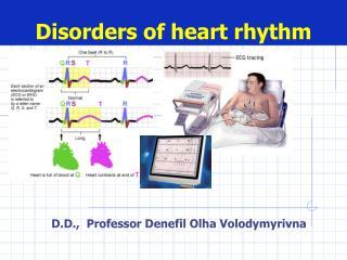 Disorders of heart rhythm