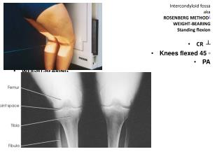 Intercondyloid  fossa aka    ROSENBERG METHOD 1 WEIGHT-BEARING Standing flexion