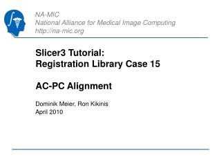 Slicer3 Tutorial:  Registration Library Case 15 AC-PC Alignment