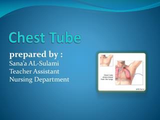 Chest Tube